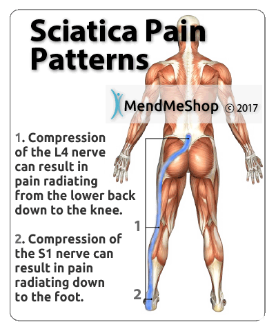 sciatica pain s1 nerve compression