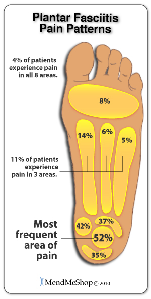Most plantar fasciitis pain is felt in and around the heel of the foot.