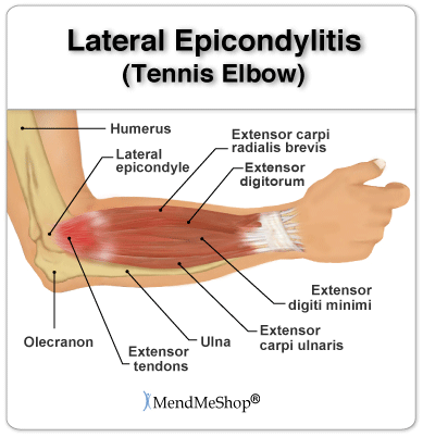 elbow pain usually expands into the shoulder