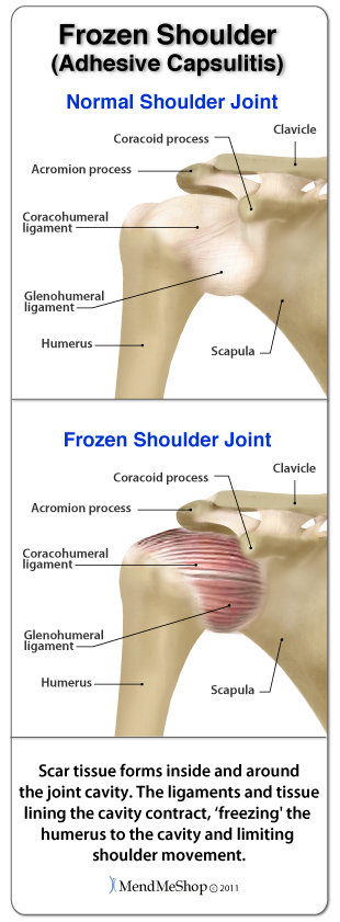Risk Factors and Causes For Developing Frozen Shoulder