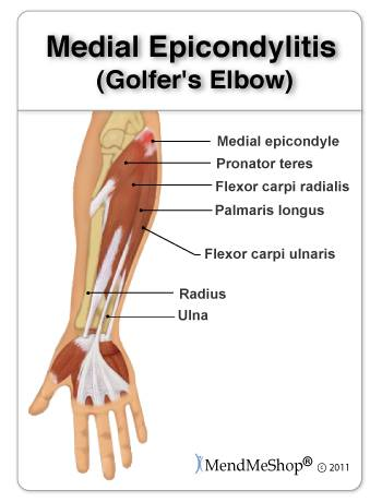 Causes of Medial Epicondylitis (Golfer's Elbow)