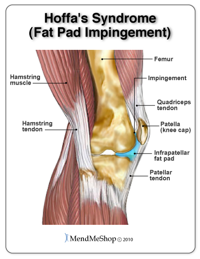 Hoffa's Syndrome (Fat Pad Impingement)