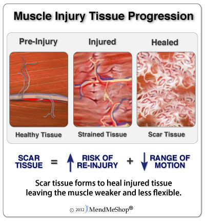 Three Stages of Healing Muscle and Soft Tissue Injuries
