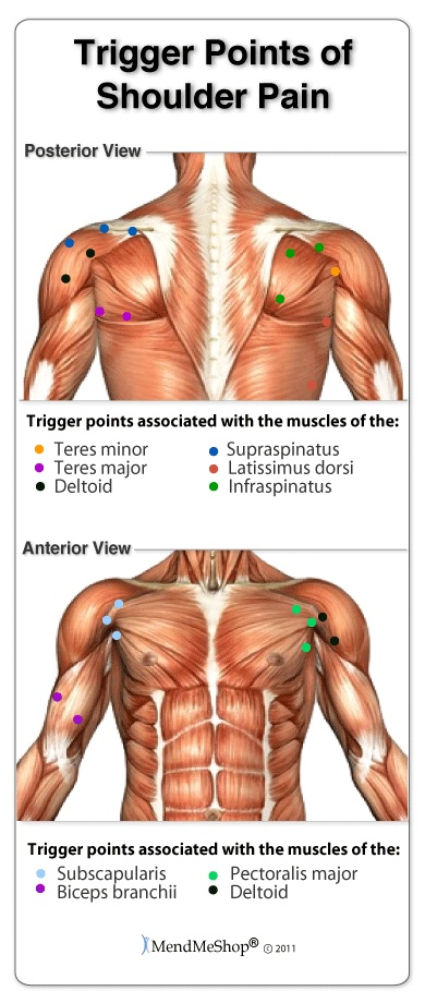 What Are Shoulder Trigger Points?