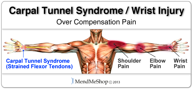 carpal tunnel syndrome overcompensation pain chart