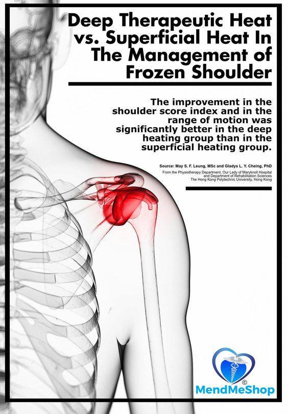 Frozen Shoulder - A Treatment Option That Is Superior To A Heating Pad
