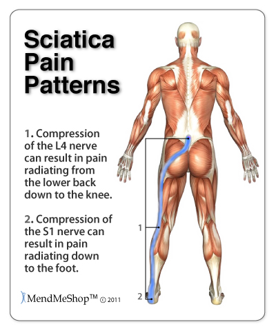 My Sciatica Is Now Symptom Free - Back Hip T Shellz Review