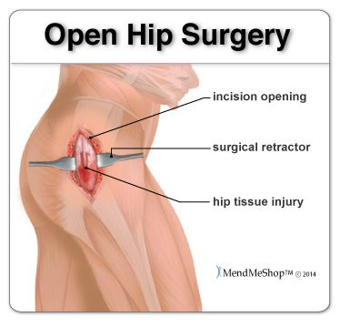Open Hip Surgery vs Arthroscopic