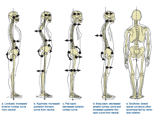 Fix Your Posture and Reduce Your Body's Aches and Pains