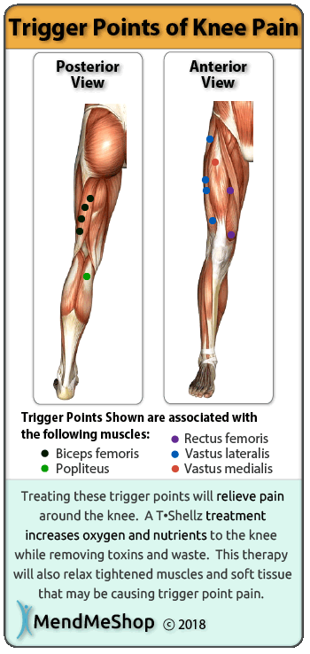 Knee Pain Trigger Point Chart