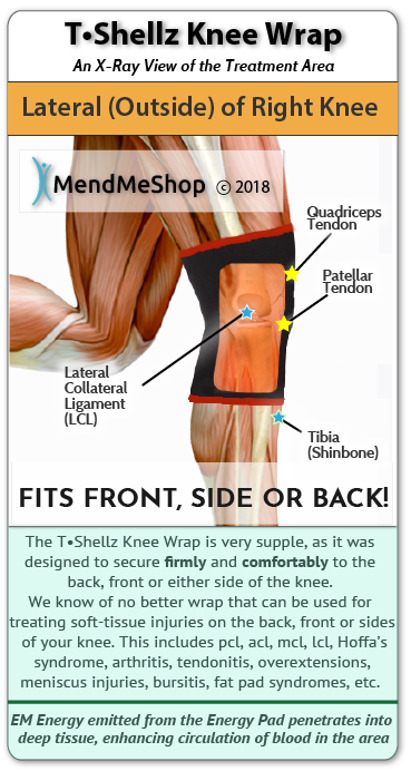 Things Are Going Well With The Knee T Shellz Wrap
