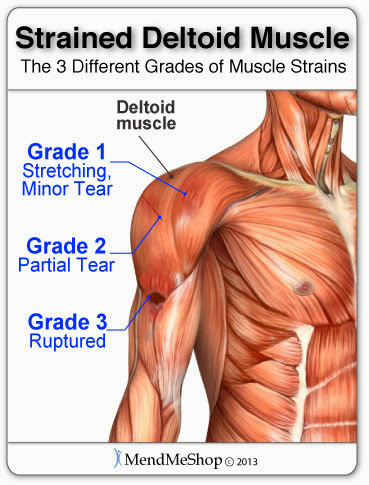 The Three Grades of Deltoid Muscle Strains