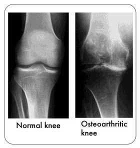 The effect of heat application on pain, stiffness, and physical function in patients with knee osteoarthritis.